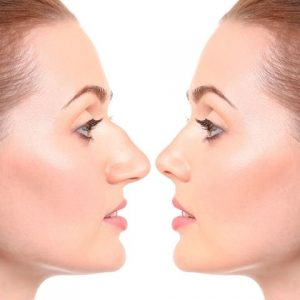 operation-chirurgie-rhinoplastie